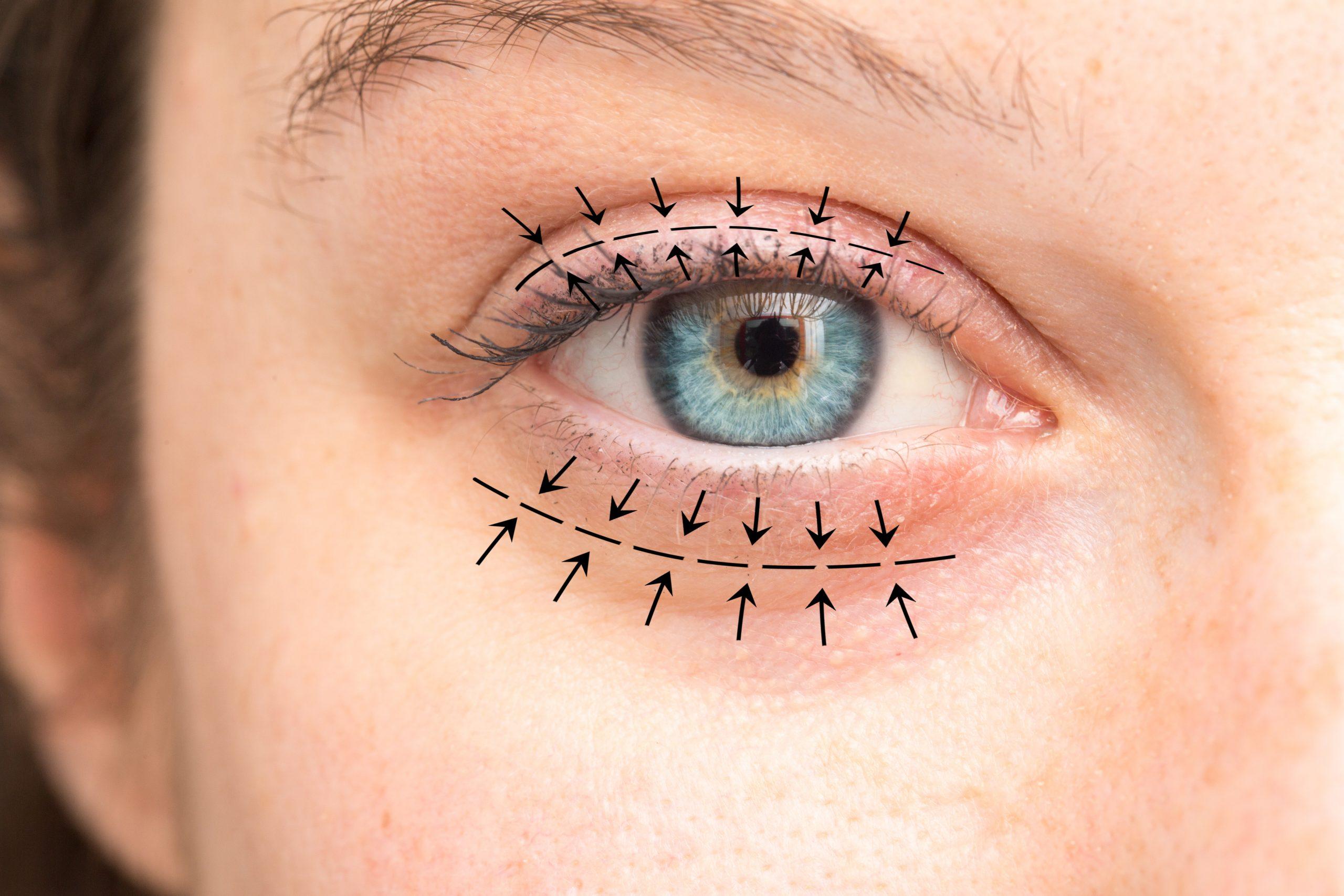 bellecour esthetique chirurgie paupieres blepharoplastie