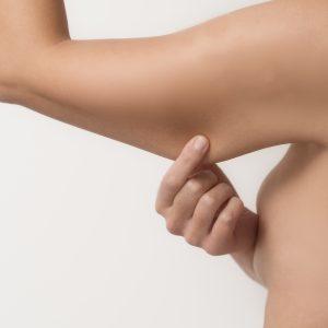bellecour esthetique lifting des bras bracioplastie