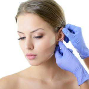 bellecour esthetique oreilles decollees implants earfold
