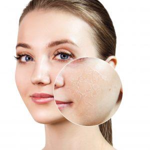 bellecour esthetique qualite peau medecine esthetique