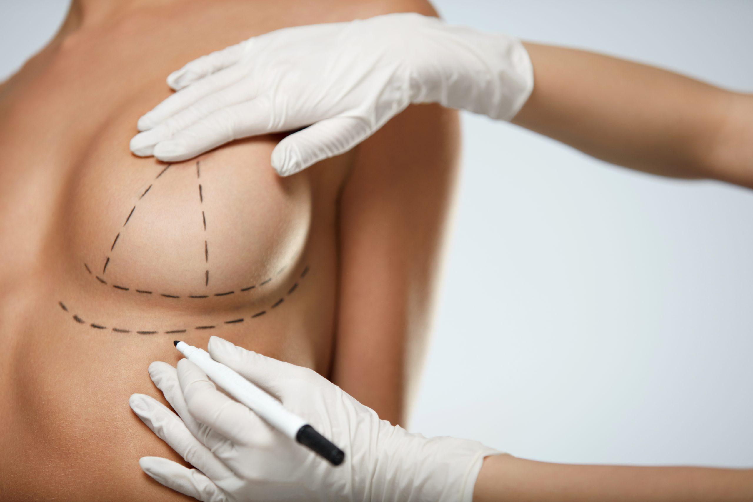 bellecour esthetique reduction mammaire hypertrophie